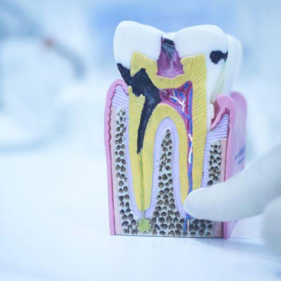 نکات کلیدی در مراقبت از دندانها