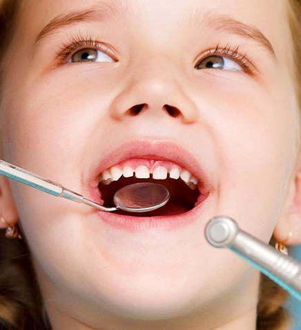 آیا دندان شیری نیاز به عصبکشی دارد؟